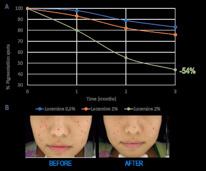 Etude clinique actif anti pigmentant
